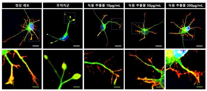 [사진설명] 고배율 현미경 관찰 상 과산화수소 처리돼 손상을 유도한 신경세포에서는 타원 모양의 수축전구가 발견됐지만 녹용 추출물을 처리한 신경세포에서는 농도에 따라 재생이 유도돼 축삭돌기가 회복 증가했다..jpg