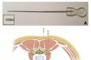 요추부 도침 안전 자입 깊이 연구, 국제학술지 게재